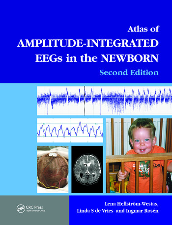 An Atlas of Amplitude-Integrated EEGs in the Newborn book cover