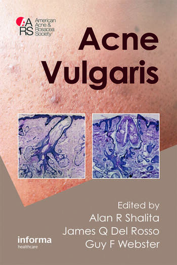Acne Vulgaris book cover