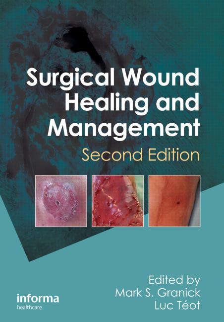 Surgical Wound Healing and Management, Second Edition book cover