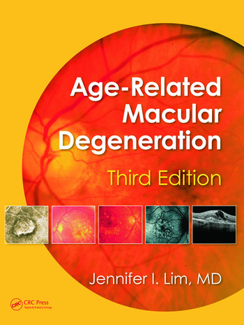 Age-Related Macular Degeneration, Third Edition book cover