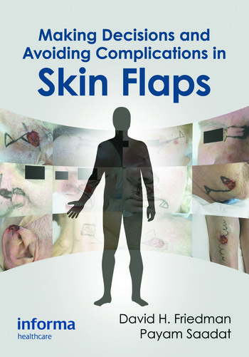 Making Decisions and Avoiding Complications in Skin Flaps book cover