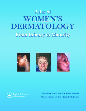 Atlas of Women's Dermatology From Infancy to Maturity book cover