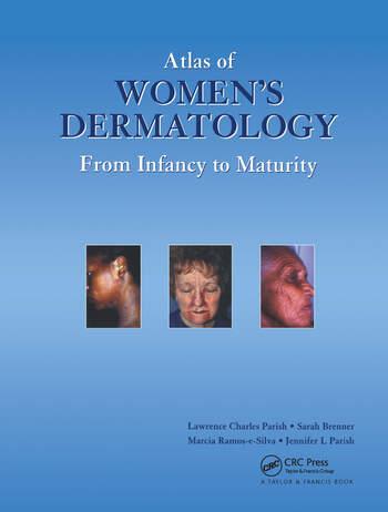 Atlas of Womens Dermatology