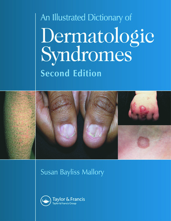 An Illustrated Dictionary of Dermatologic Syndromes book cover