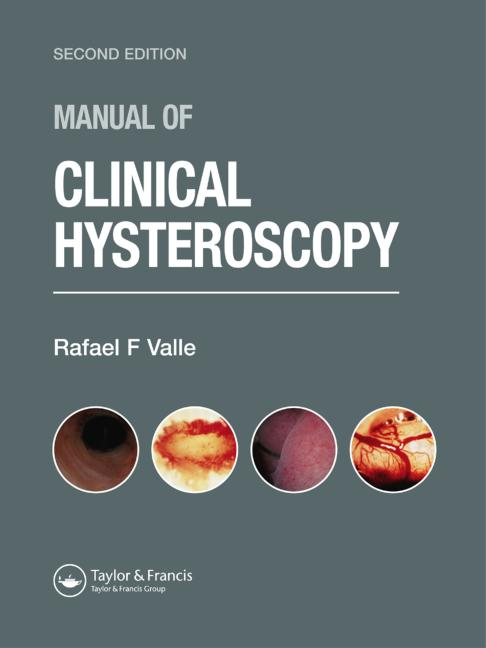 Manual of Clinical Hysteroscopy, Second Edition book cover