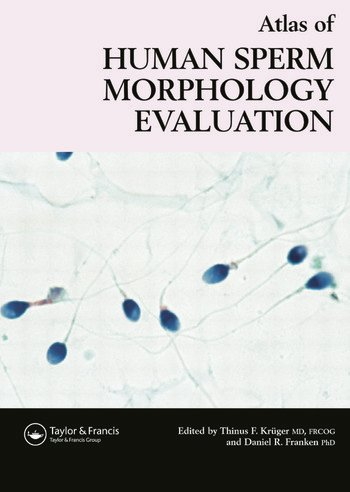 Atlas of Human Sperm Morphology Evaluation book cover