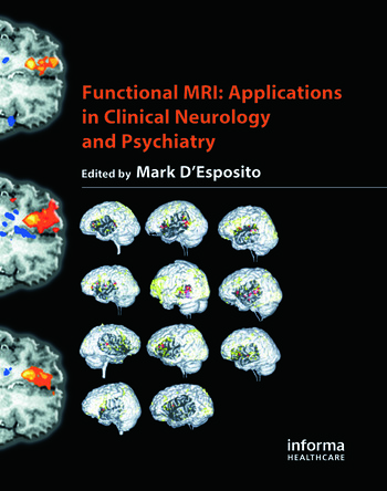 functional mri desposito mark