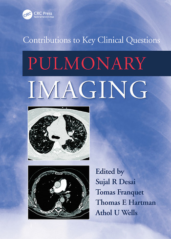 Pulmonary Imaging Contributions to Key Clinical Questions book cover