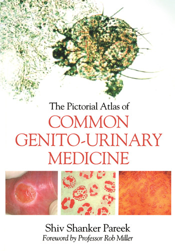 The Pictorial Atlas of Common Genito-Urinary Medicine book cover