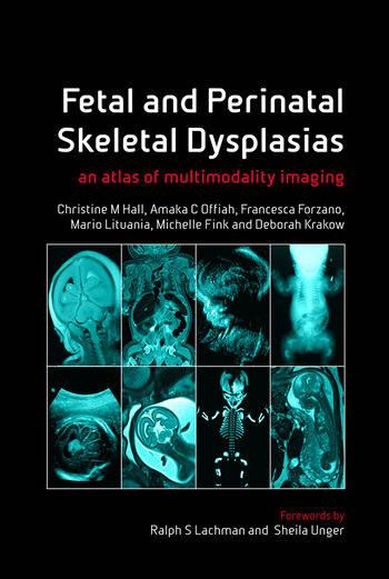 Fetal and Perinatal Skeletal Dysplasias an Atlas of Multimodality Imaging book cover