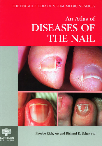 An Atlas Of Diseases The Nail Book Cover