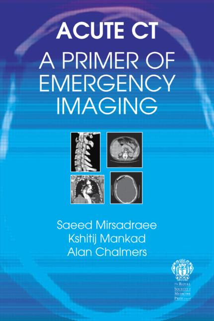 Acute CT: A Primer of Emergency Imaging book cover