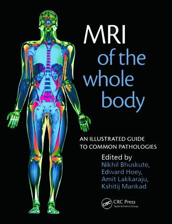 Mri Of The Whole Body An Illustrated Guide For Common Pathologies