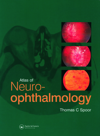Atlas of Neuro-ophthalmology book cover