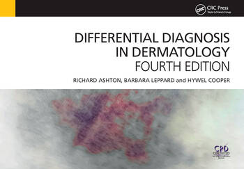 Differential Diagnosis in Dermatology book cover