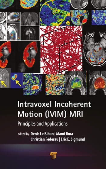 Intravoxel Incoherent Motion (IVIM) MRI Principles and Applications book cover