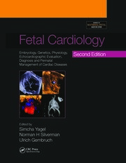 Fetal Cardiology: Embryology, Genetics, Physiology, Echocardiographic Evaluation, Diagnosis and Perinatal Management of Cardiac Diseases