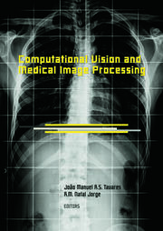 Computational Vision and Medical Image Processing: VipIMAGE 2007