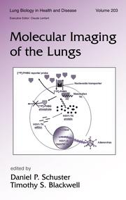 Imaging Cellular and Molecular Processes in the Lung Using Bioluminescent Reporter Genes