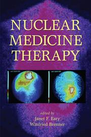 Radionuclide Joint Therapy