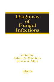 Serodiagnosis: Antibody and Antigen Detection