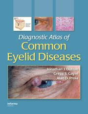 Diagnostic Atlas of Common Eyelid Diseases