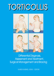 Assessment and Treatment of Children with Congenital Muscular Torticollis