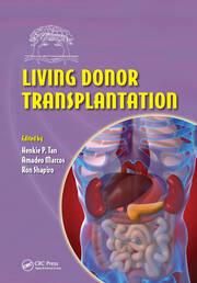 Living Donor Transplantation