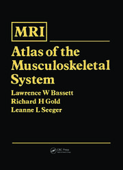MRI Atlas of the Muscoskeletal System