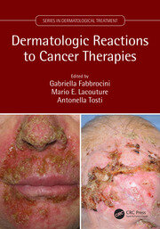 Dermatologic Reactions to Cancer Therapies
