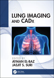 Lung Imaging and CADx