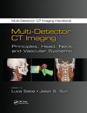 Multi-Detector CT Imaging: Principles, Head, Neck, and Vascular Systems