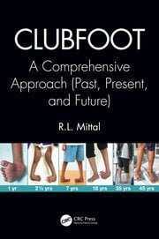 Featured Title - Clubfoot - 1st Edition book cover