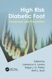 High Risk Diabetic Foot: Treatment and Prevention
