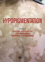 Hypopigmentation