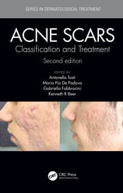 Acne Scars: Classification and Treatment, Second Edition