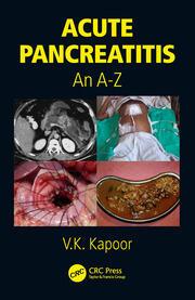 Acute Pancreatitis: An A-Z