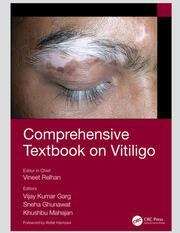 Assessment of Vitiligo