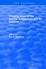 Imaging Atlas of the Normal Gallbladder and Its Variants