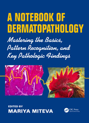 A Notebook of Dermatopathology: Mastering the Basics, Pattern Recognition, and Key Pathologic Findings