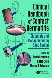 Clinical Handbook of Contact Dermatitis: Diagnosis - 1st Edition book cover