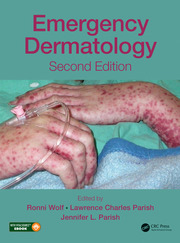 Emergency Dermatology, Second Edition
