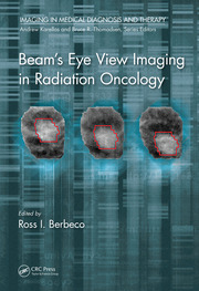 Beam's Eye View Imaging in Radiation Oncology