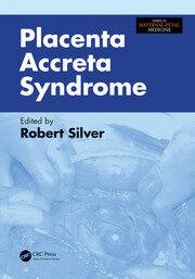 Placenta Accreta Syndrome