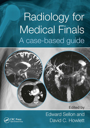 Radiology for Medical Finals: A case-based guide