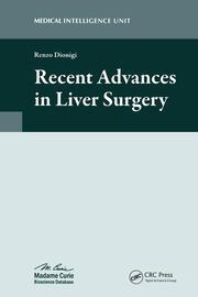 Recent Advances in Liver Surgery