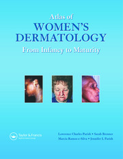Atlas Womens Dermatology - 1st Edition book cover